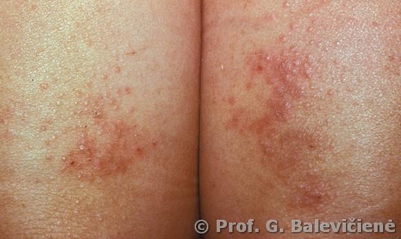 Niežulys, bėrimai ir paraudimai: kaip įveikti alerginį kontaktinį dermatitą?